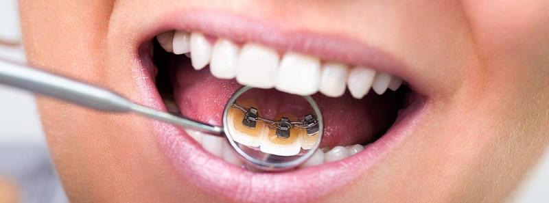 Lingual braces nelson bay