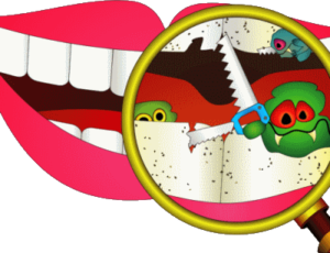 cartoon of tooth decay build up