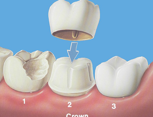 Caring For Your New Dental Crown