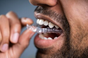 man with clear aligners
